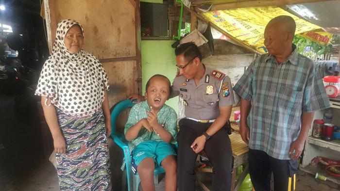 Satlantas Polres Bangkalan Peduli Sesama, Bantu Penderita Hidrosefalus